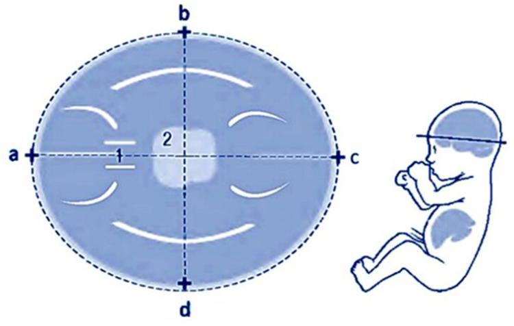Определение размеров БПР и ЛЗР