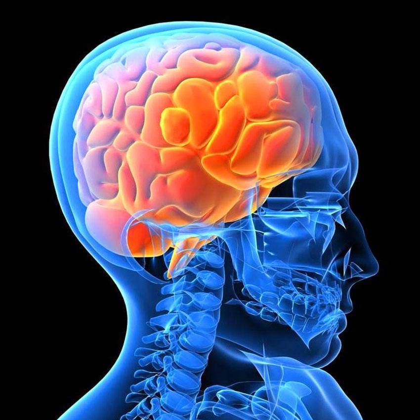Чем можно заменить мрт головного мозга