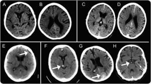 Процедура мрт головного мозга сколько длится
