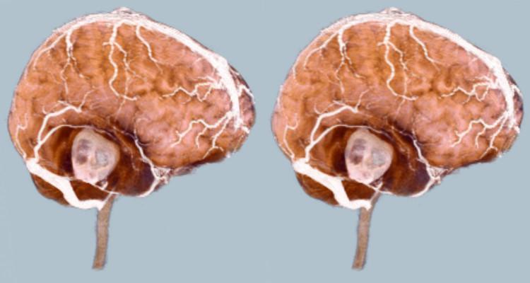 Показывает ли мрт опухоль головного мозга