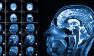 Подготовка к МРТ головного мозга и его сосудов с контрастом или без