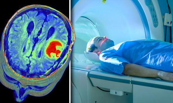 МРТ как способ диагностики головного мозга. Может ли МРТ или ПЭТ КТ ошибаться при постановке у пациента диагноза рак?