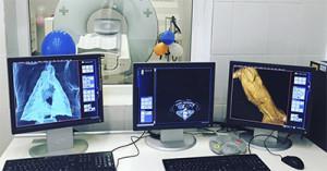 Что такое КТ и РКТ в медицине, как делают томографию, что показывает исследование?