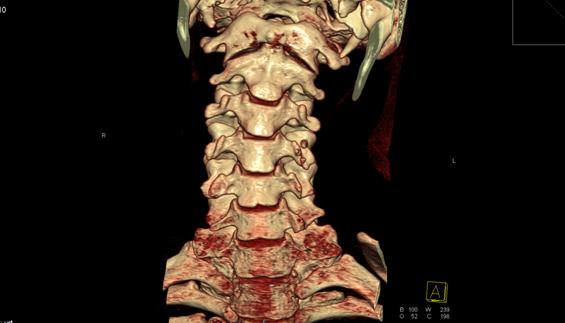 Чем отличается КТ от МРТ позвоночника и что лучше сделать