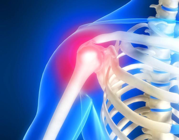 Что показывает КТ плечевого сустава 🚩, КТ или МРТ