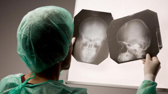 Рентген головы взрослому